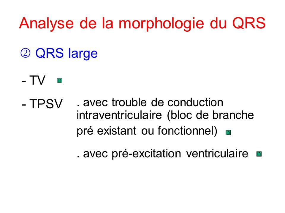 Analyse de la morphologie du QRS. avec pré-excitation ventriculaire QRS large - TPSV - TV. avec trouble de conduction intraventriculaire (bloc de bran