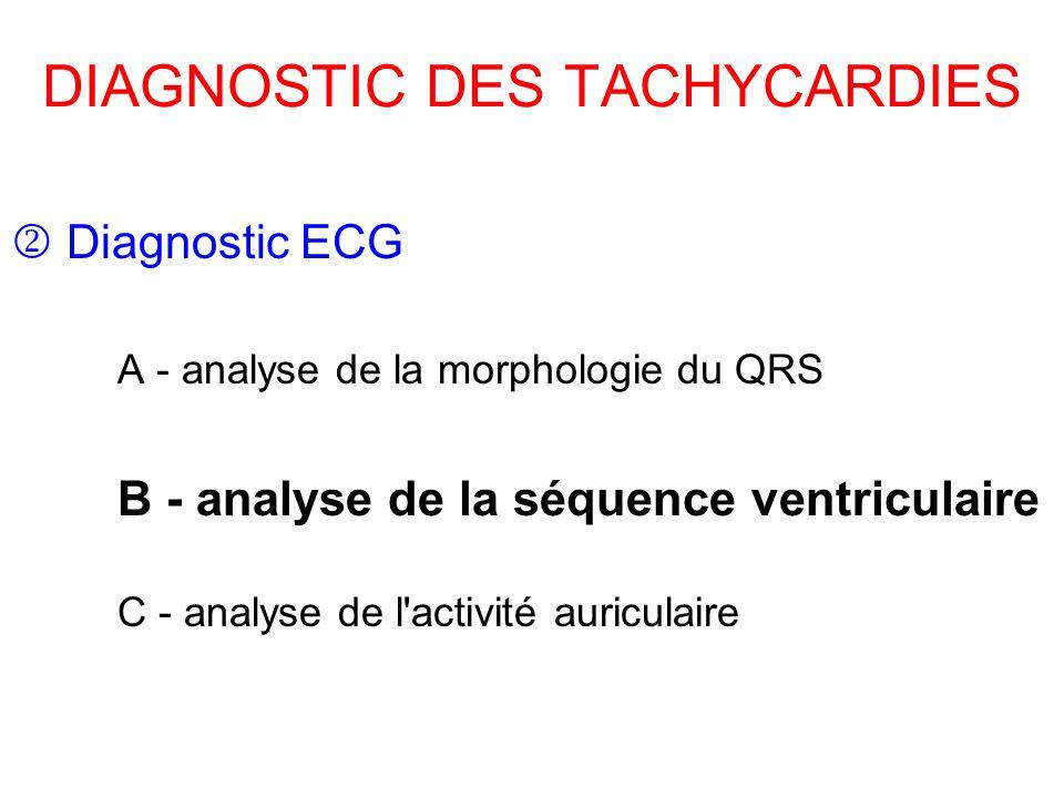 DIAGNOSTIC DES TACHYCARDIES Diagnostic ECG A - analyse de la morphologie du QRS B - analyse de la séquence ventriculaire C - analyse de l activité auriculaire
