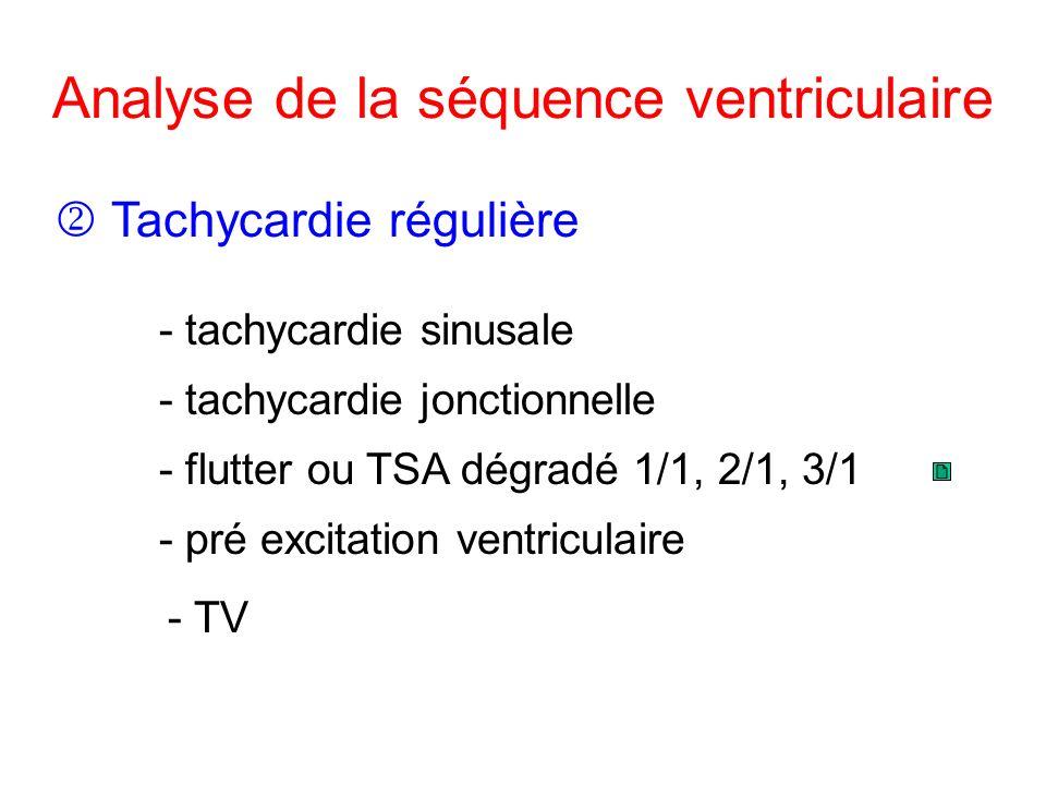 Analyse de la séquence ventriculaire - TV Tachycardie régulière - tachycardie sinusale - tachycardie jonctionnelle - pré excitation ventriculaire - flutter ou TSA dégradé 1/1, 2/1, 3/1