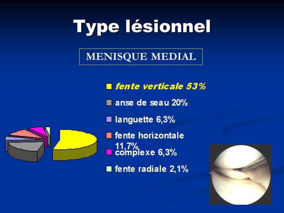 Type lésionnel MENISQUE LATERAL