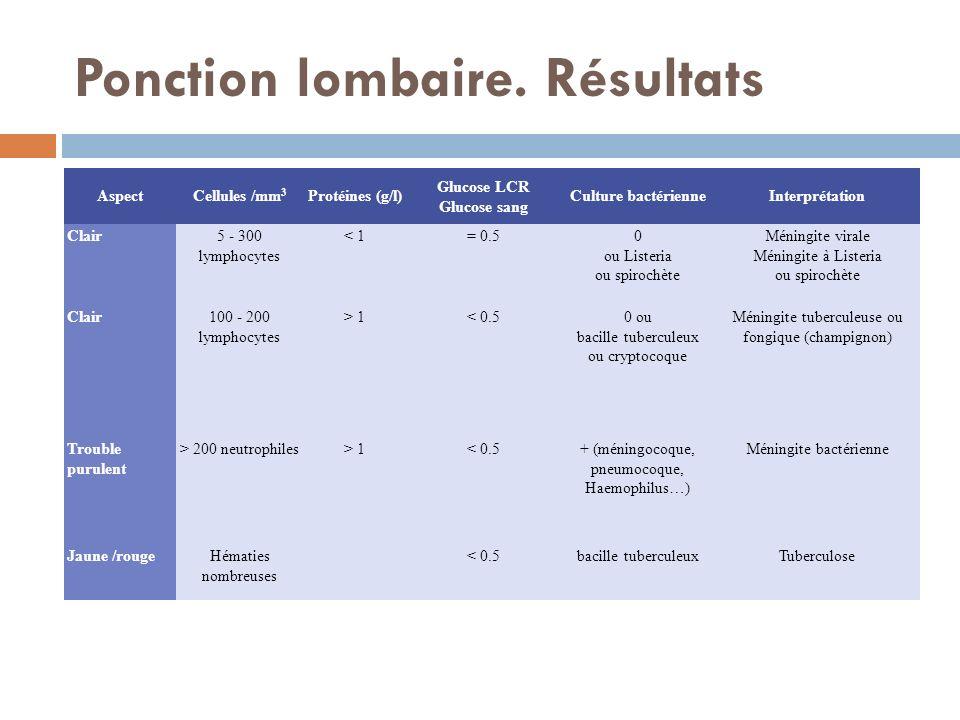 Ponction lombaire. Résultats AspectCellules /mm 3 Protéines (g/l) Glucose LCR Glucose sang Culture bactérienneInterprétation Clair5 - 300 lymphocytes