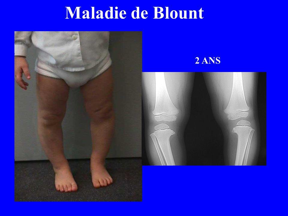 2 ANS Maladie de Blount