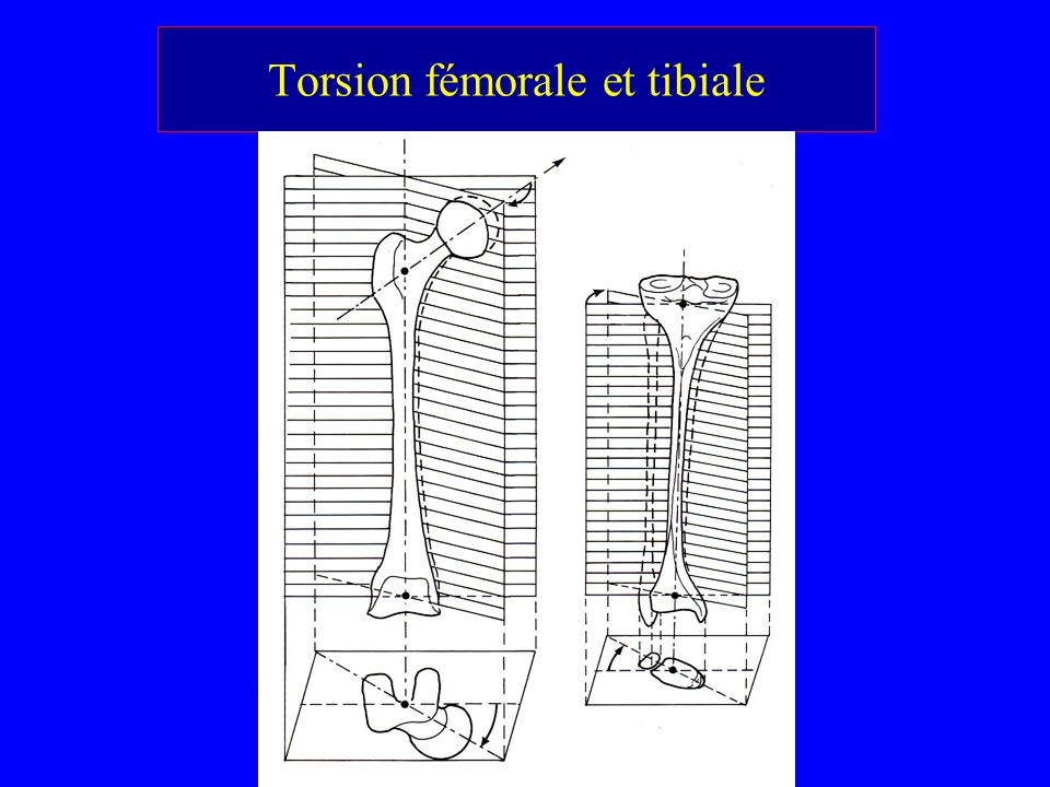 Torsion fémorale et tibiale