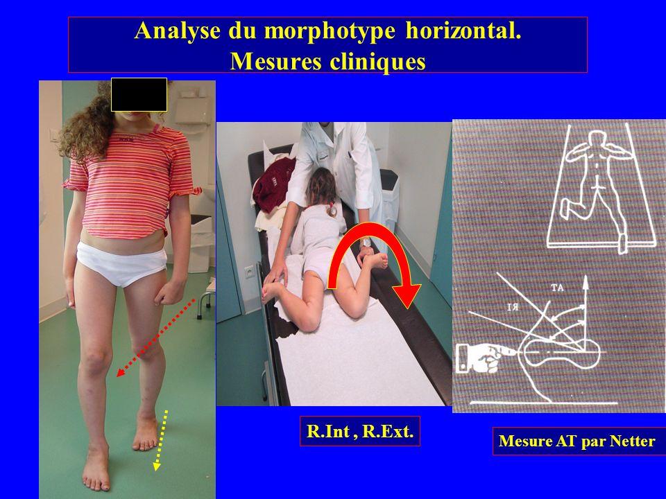 R.Int, R.Ext. Analyse du morphotype horizontal. Mesures cliniques Mesure AT par Netter