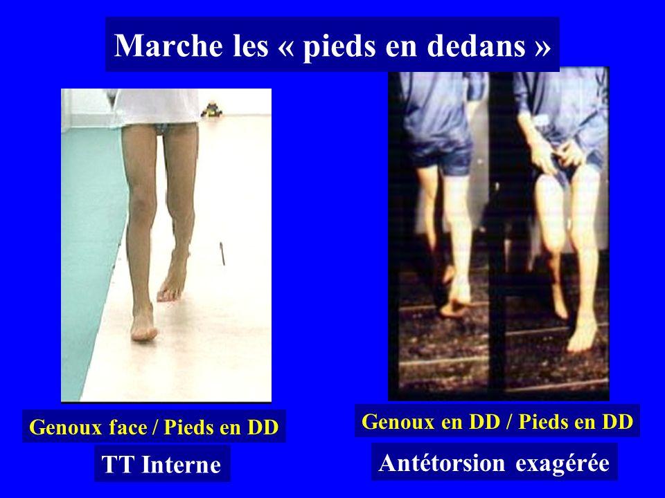 Marche les « pieds en dedans » Genoux face / Pieds en DD Genoux en DD / Pieds en DD Antétorsion exagérée TT Interne