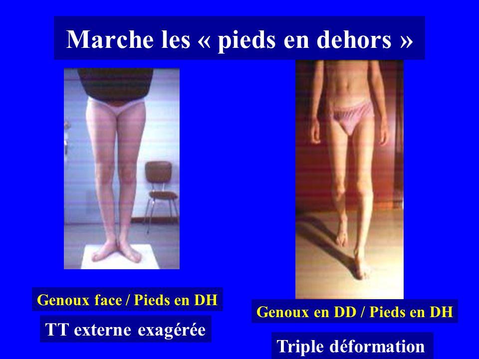 Marche les « pieds en dehors » Genoux face / Pieds en DH Genoux en DD / Pieds en DH TT externe exagérée Triple déformation