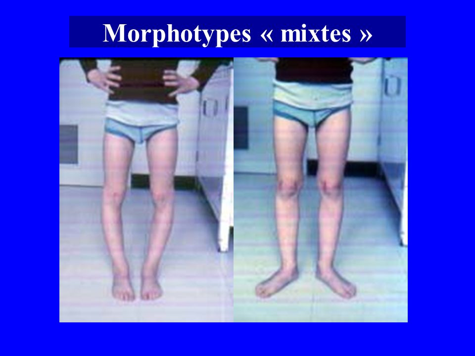 Morphotypes « mixtes »
