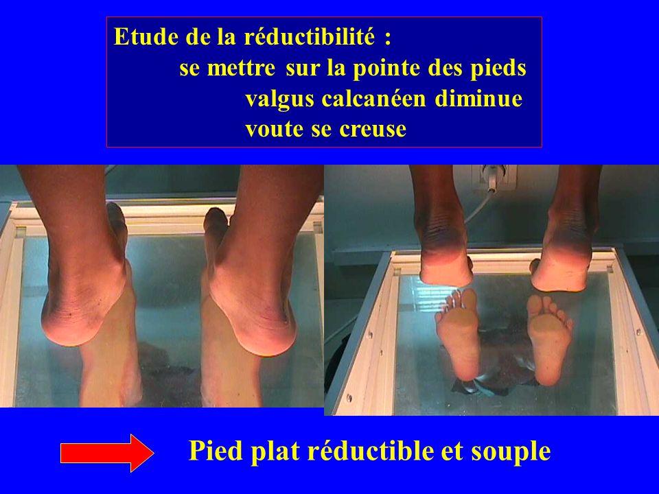 Etude de la réductibilité : se mettre sur la pointe des pieds valgus calcanéen diminue voute se creuse Pied plat réductible et souple