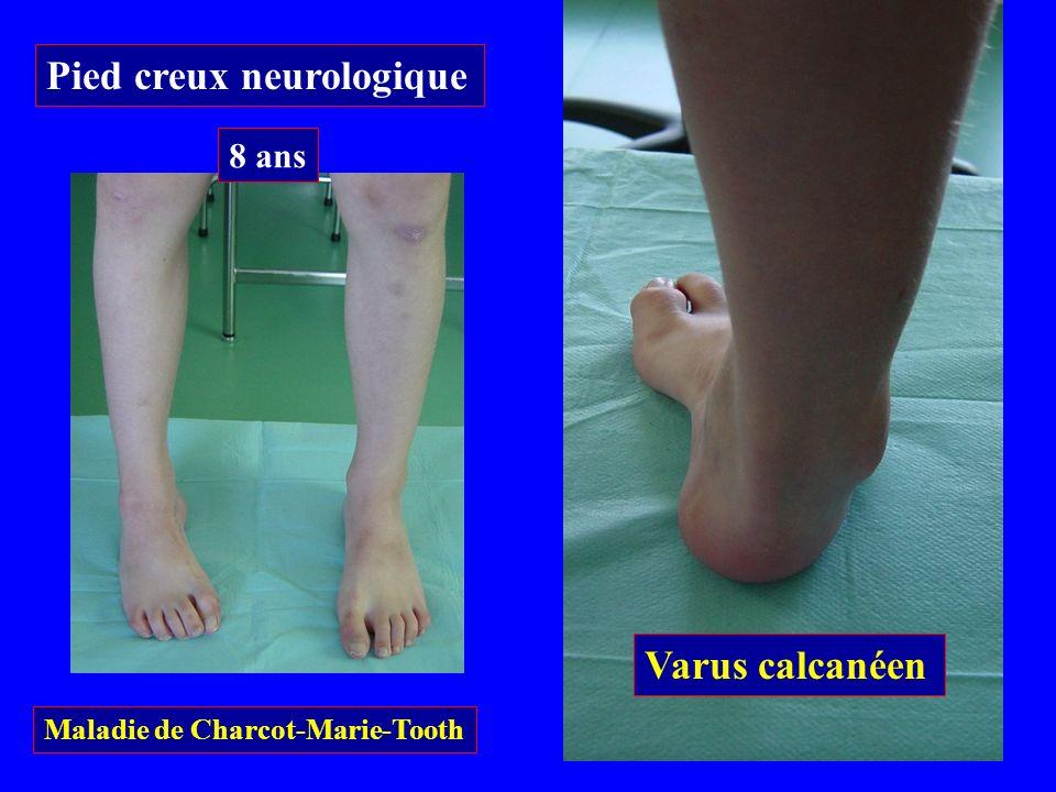 Varus calcanéen Pied creux neurologique Maladie de Charcot-Marie-Tooth 8 ans
