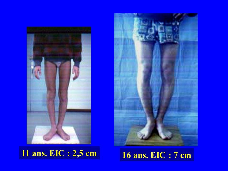 11 ans. EIC : 2,5 cm 16 ans. EIC : 7 cm