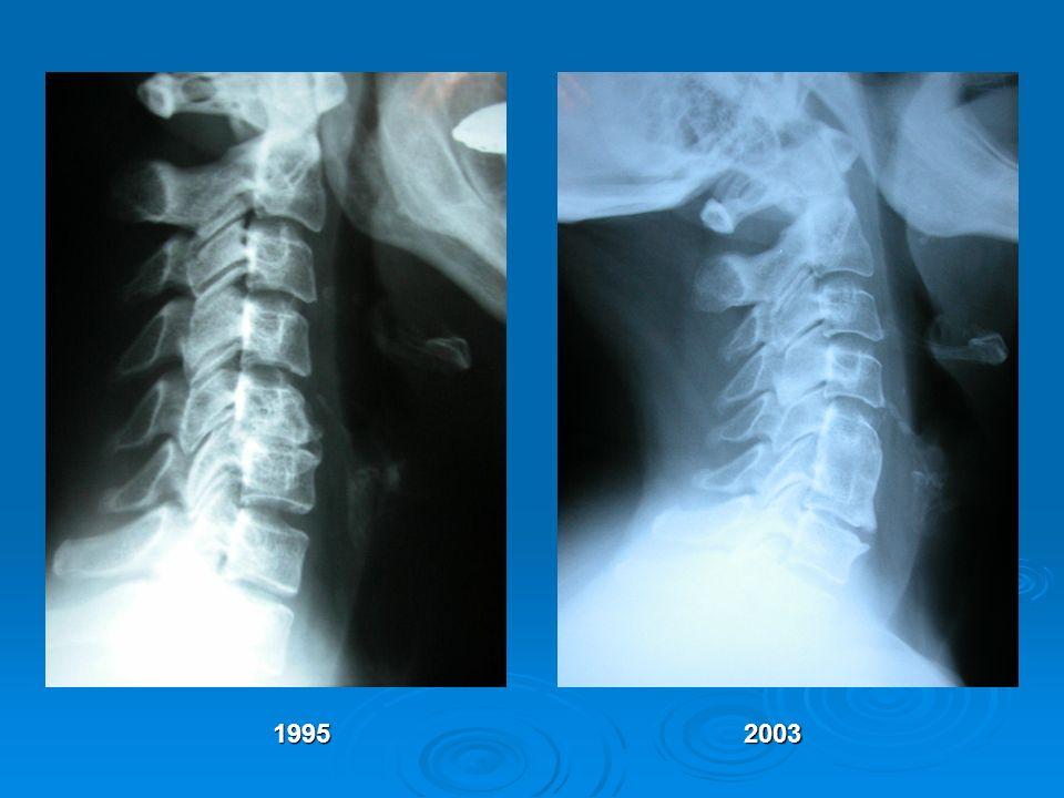 19952003