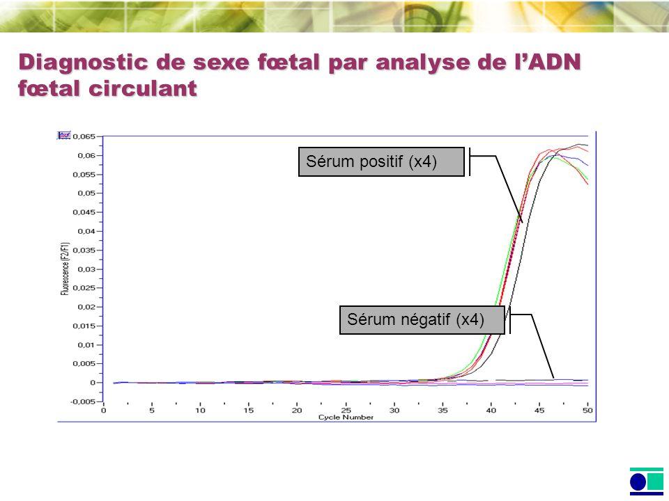 Sérum positif (x4) Sérum négatif (x4) Diagnostic de sexe fœtal par analyse de lADN fœtal circulant