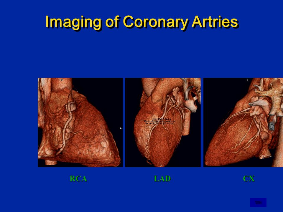 Imaging of Coronary Artries RCALADCX