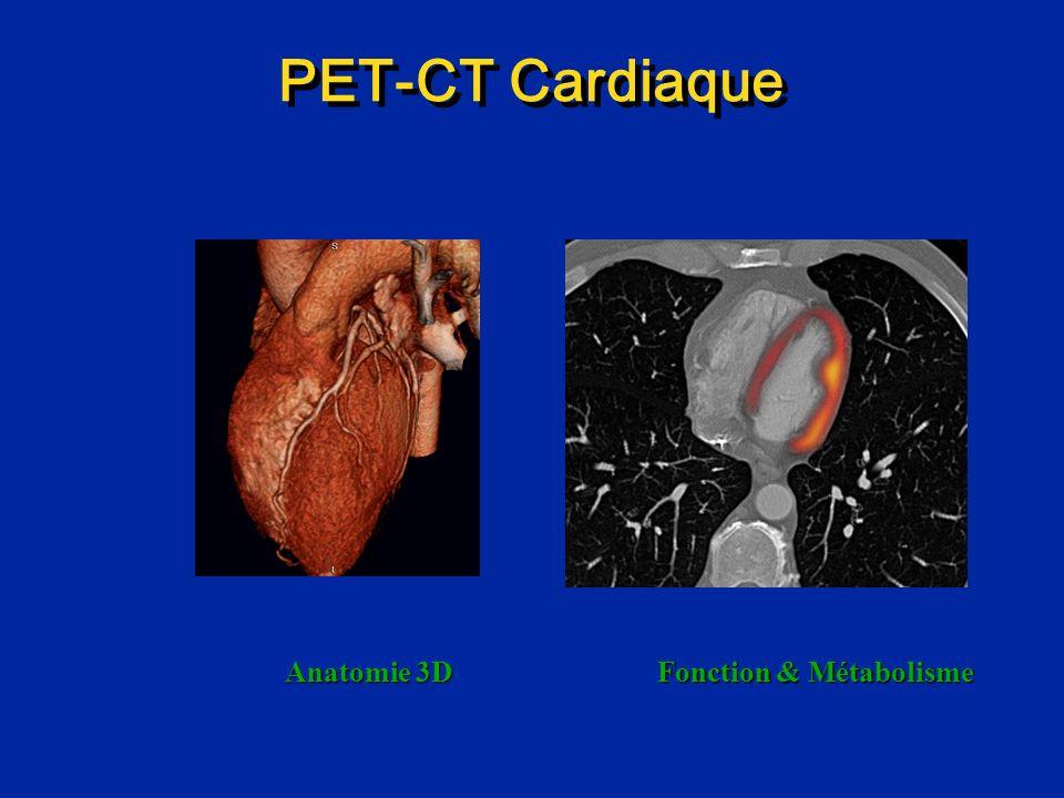 PET-CT Cardiaque Anatomie 3D Fonction & Métabolisme