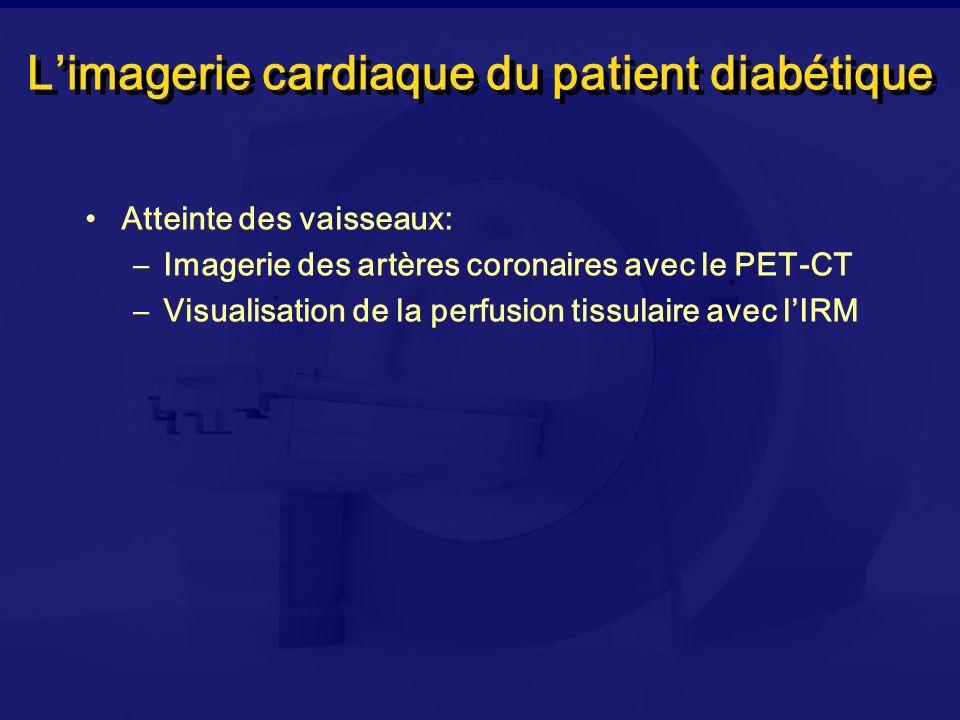 Limagerie cardiaque du patient diabétique Atteinte des vaisseaux: –Imagerie des artères coronaires avec le PET-CT –Visualisation de la perfusion tissu