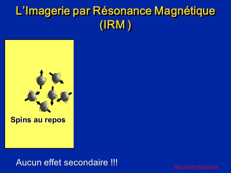 LImagerie par Résonance Magnétique (IRM ) http://www.mri.tju.edu Spins au repos Alignement avec le champ magnétique Aimantation résiduelle Aucun effet