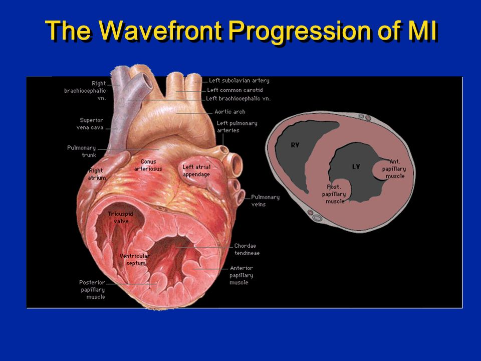 The Wavefront Progression of MI