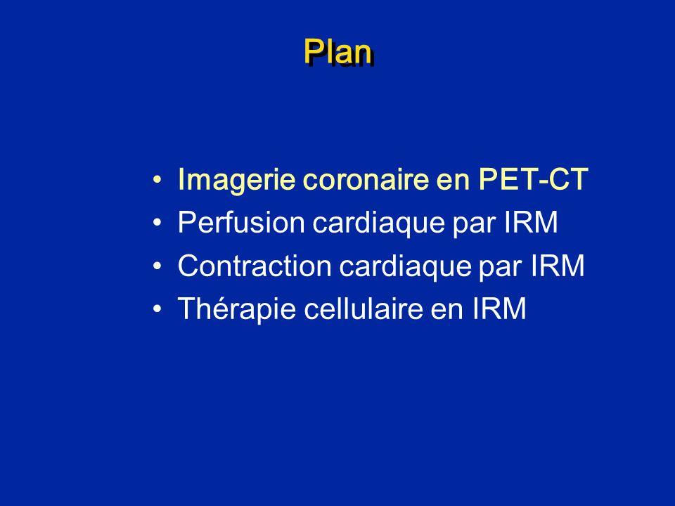 Plan Imagerie coronaire en PET-CT Perfusion cardiaque par IRM Contraction cardiaque par IRM Thérapie cellulaire en IRM