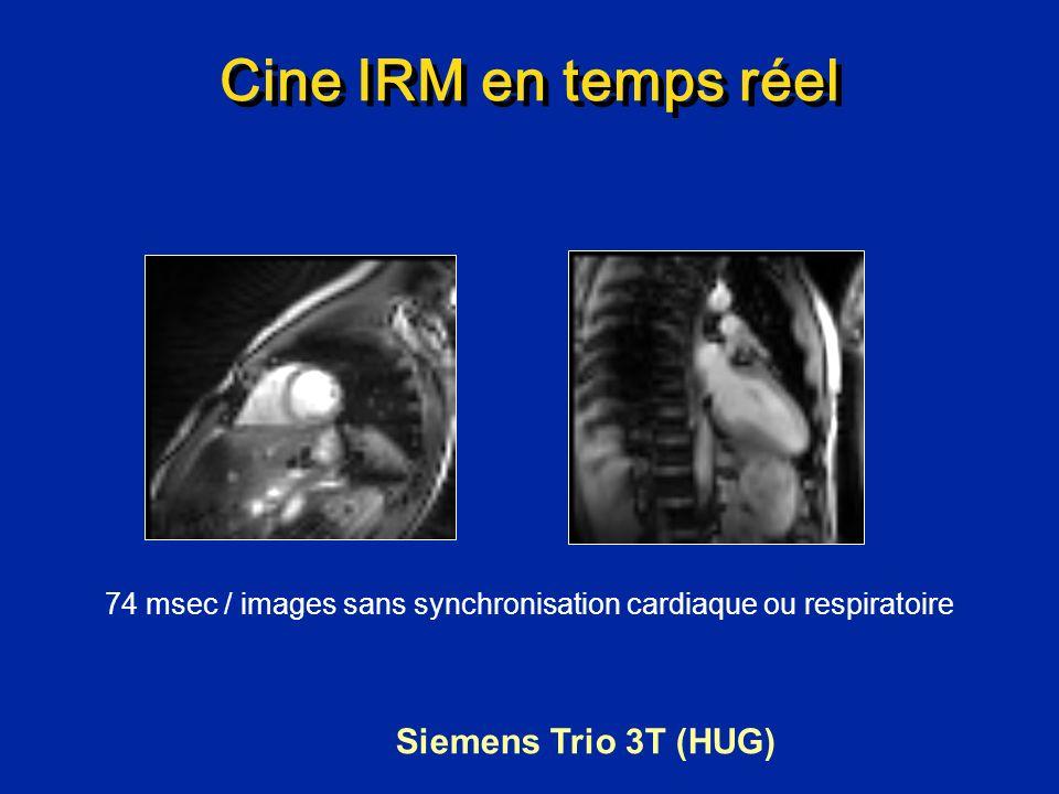 Cine IRM en temps réel Siemens Trio 3T (HUG) 74 msec / images sans synchronisation cardiaque ou respiratoire