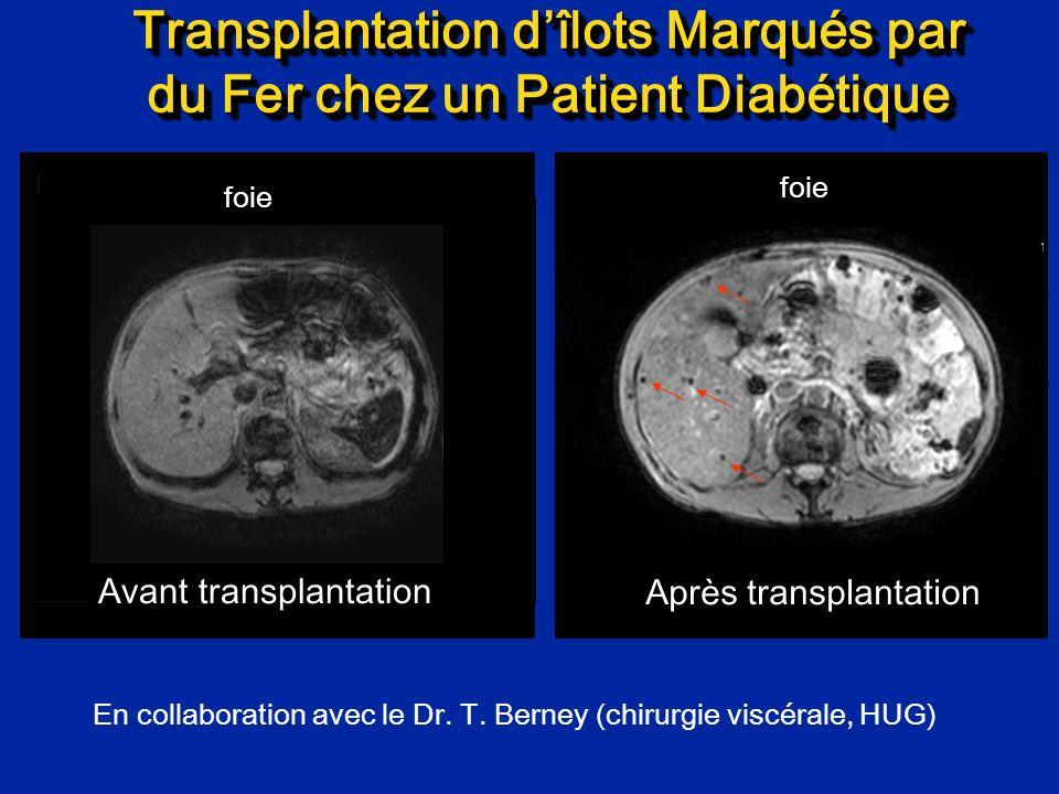 Transplantation dîlots Marqués par du Fer chez un Patient Diabétique Avant transplantation Après transplantation foie En collaboration avec le Dr. T.