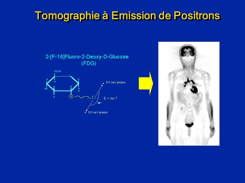 Imagerie de la Perfusion Cardiaque en IRM Injection de produit de contraste iv Imagerie du coeur passage du contraste temps Contraste IV 1 IRM 2