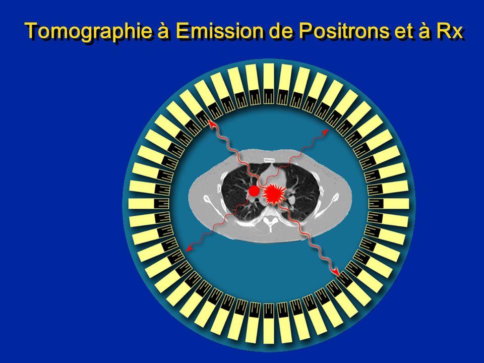 Imagerie PET/CT combinée PET => métabolisme CT => morphologie