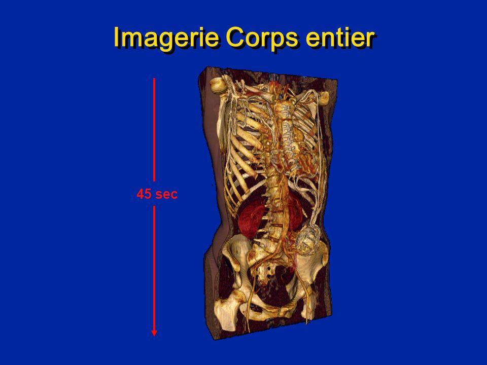 Perfusion cardiaque en IRM Examen normal