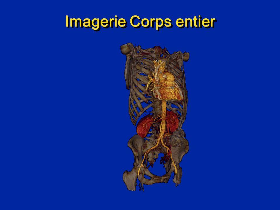 Whole Body Imaging