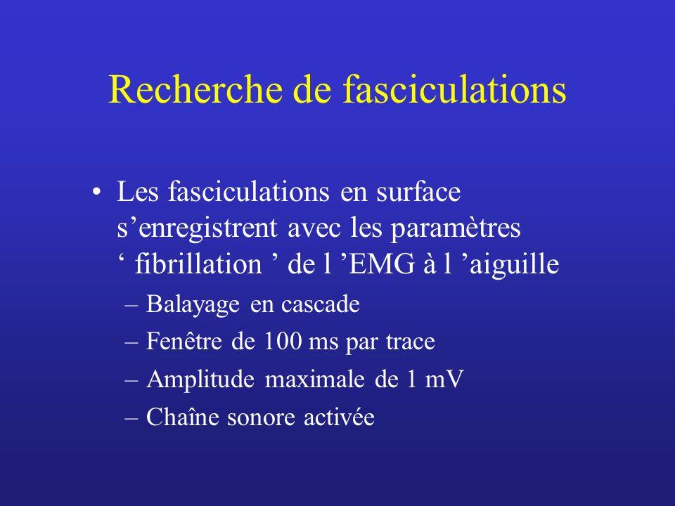 Recherche de fasciculations Les fasciculations en surface senregistrent avec les paramètres fibrillation de l EMG à l aiguille –Balayage en cascade –Fenêtre de 100 ms par trace –Amplitude maximale de 1 mV –Chaîne sonore activée