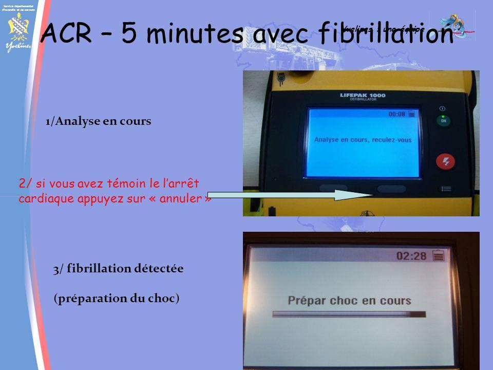 Service départemental d incendie et de secours Yvelines : une équipe SAP ACR – 5 minutes avec fibrillation 1/Analyse en cours 3/ fibrillation détectée (préparation du choc) 2/ si vous avez témoin le larrêt cardiaque appuyez sur « annuler »