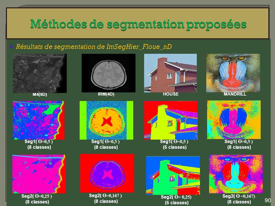 Résultats de segmentation de ImSegHier_Floue_nD M4(9D) Seg1( =0,5 ) (8 classes) IRM(4D)HOUSEMANDRILL Seg1( =0,5 ) (8 classes) Seg1( =0,5 ) (5 classes)