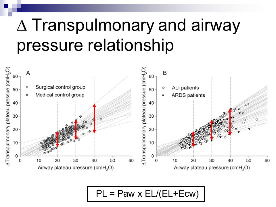 Transpulmonary and airway pressure relationship PL = Paw x EL/(EL+Ecw)