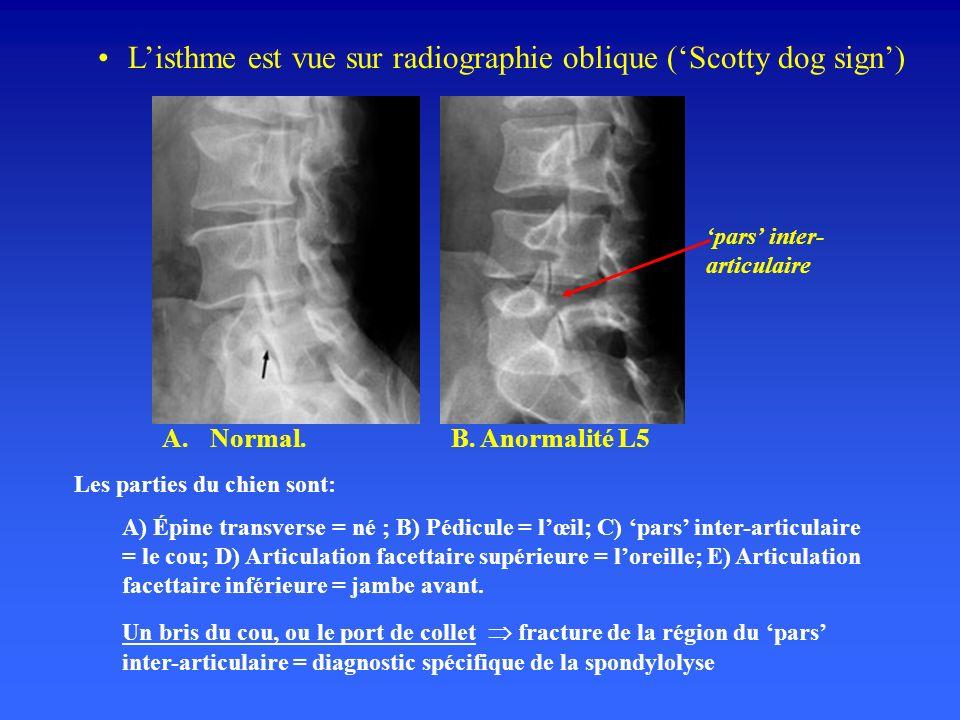 Listhme est vue sur radiographie oblique (Scotty dog sign) Les parties du chien sont: A) Épine transverse = né ; B) Pédicule = lœil; C) pars inter-articulaire = le cou; D) Articulation facettaire supérieure = loreille; E) Articulation facettaire inférieure = jambe avant.