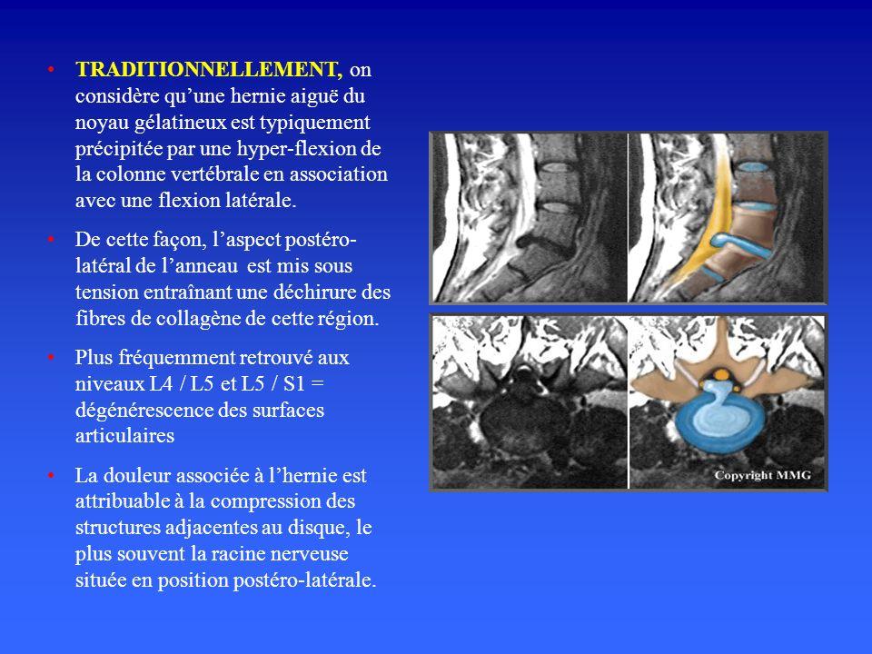 TRADITIONNELLEMENT, on considère quune hernie aiguë du noyau gélatineux est typiquement précipitée par une hyper-flexion de la colonne vertébrale en association avec une flexion latérale.