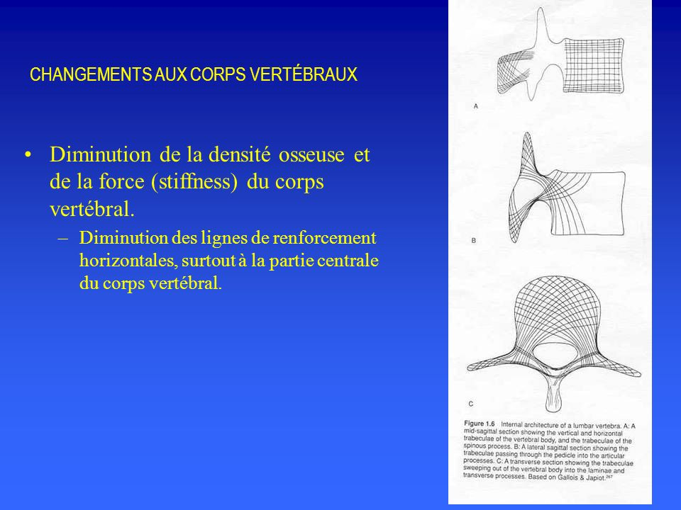 CHANGEMENTS AUX CORPS VERTÉBRAUX Diminution de la densité osseuse et de la force (stiffness) du corps vertébral.