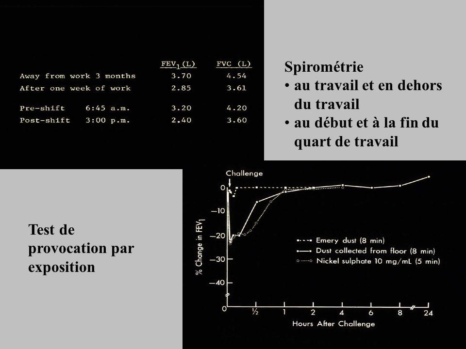 Spirométrie au travail et en dehors du travail au début et à la fin du quart de travail Test de provocation par exposition