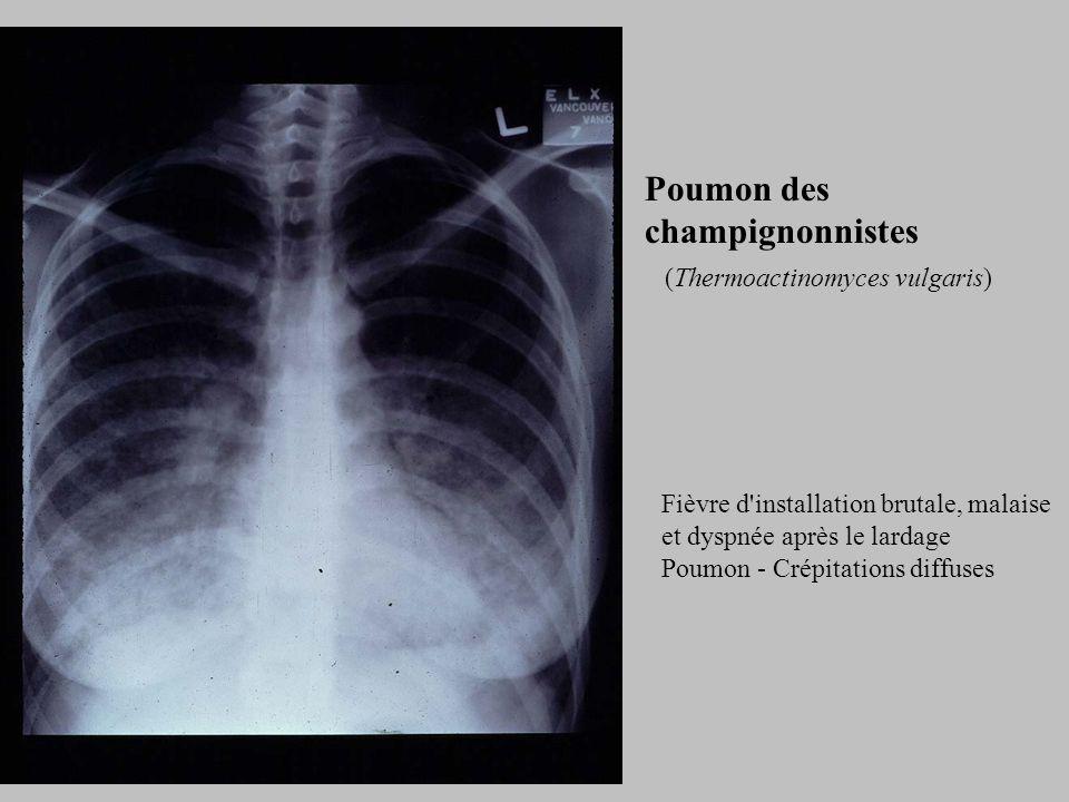 Poumon des champignonnistes (Thermoactinomyces vulgaris) Fièvre d installation brutale, malaise et dyspnée après le lardage Poumon - Crépitations diffuses