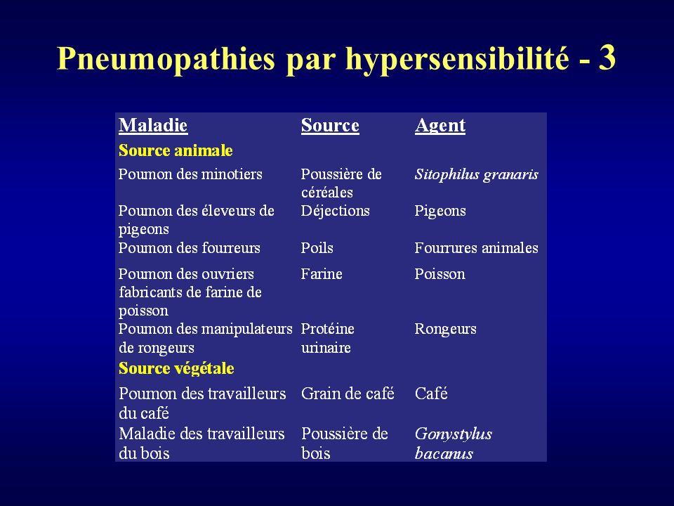 Pneumopathies par hypersensibilité - 3