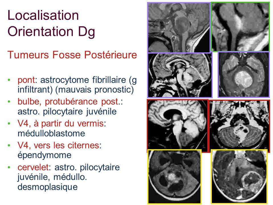 Localisation Orientation Dg Tumeurs Fosse Postérieure pont: astrocytome fibrillaire (g infiltrant) (mauvais pronostic) bulbe, protubérance post.: astr