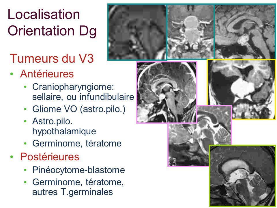 Localisation Orientation Dg Tumeurs du V3 Antérieures Craniopharyngiome: sellaire, ou infundibulaire Gliome VO (astro.pilo.) Astro.pilo. hypothalamiqu