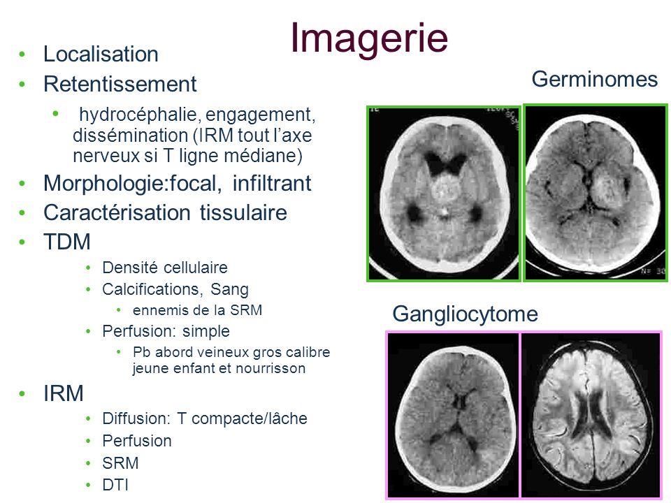 Imagerie Localisation Retentissement hydrocéphalie, engagement, dissémination (IRM tout laxe nerveux si T ligne médiane) Morphologie:focal, infiltrant
