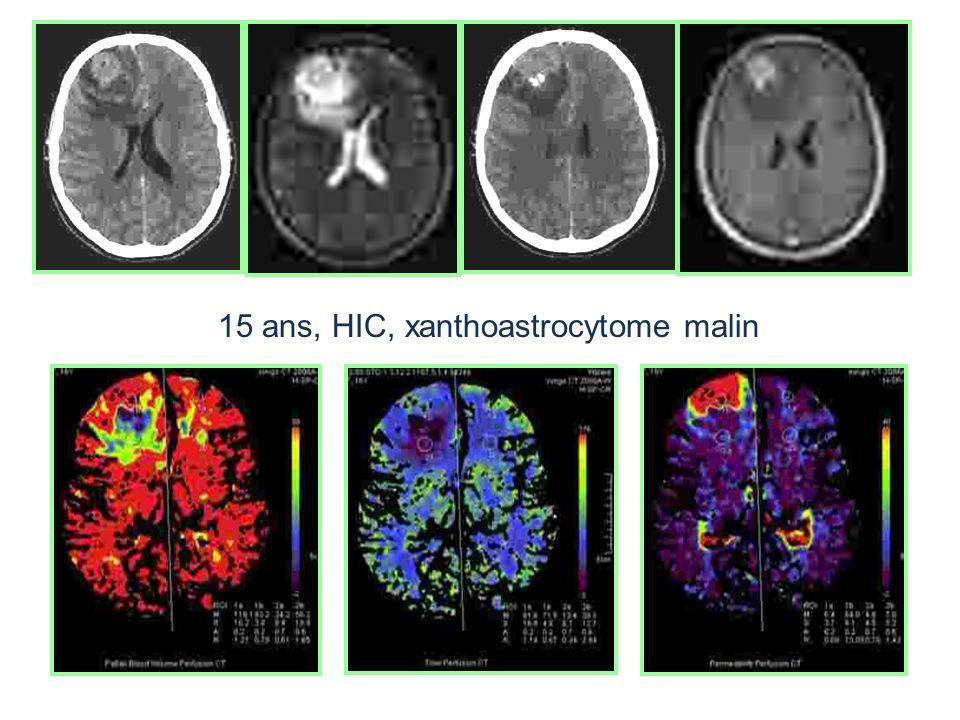15 ans, HIC, xanthoastrocytome malin