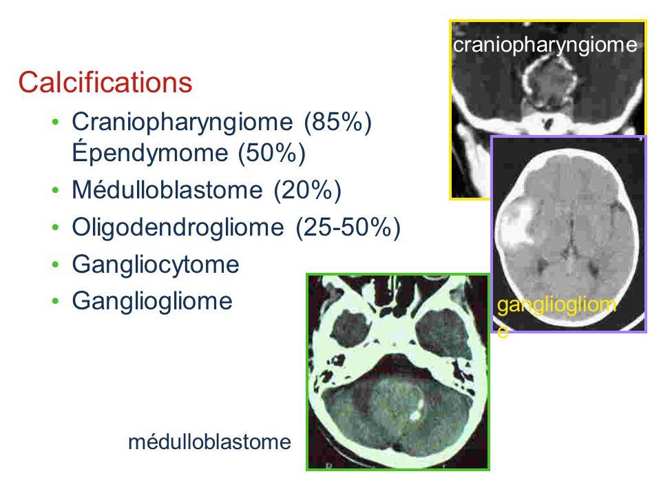 Calcifications Craniopharyngiome (85%) Épendymome (50%) Médulloblastome (20%) Oligodendrogliome (25-50%) Gangliocytome Gangliogliome gangliogliom e cr