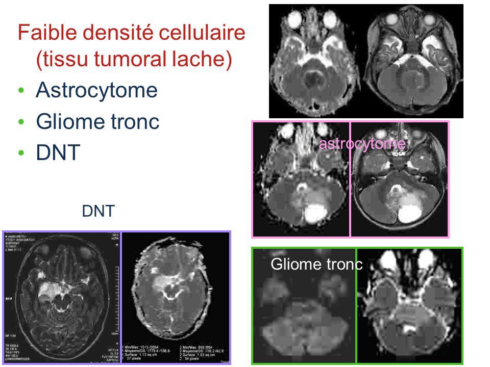 Faible densité cellulaire (tissu tumoral lache) Astrocytome Gliome tronc DNT Gliome tronc astrocytome
