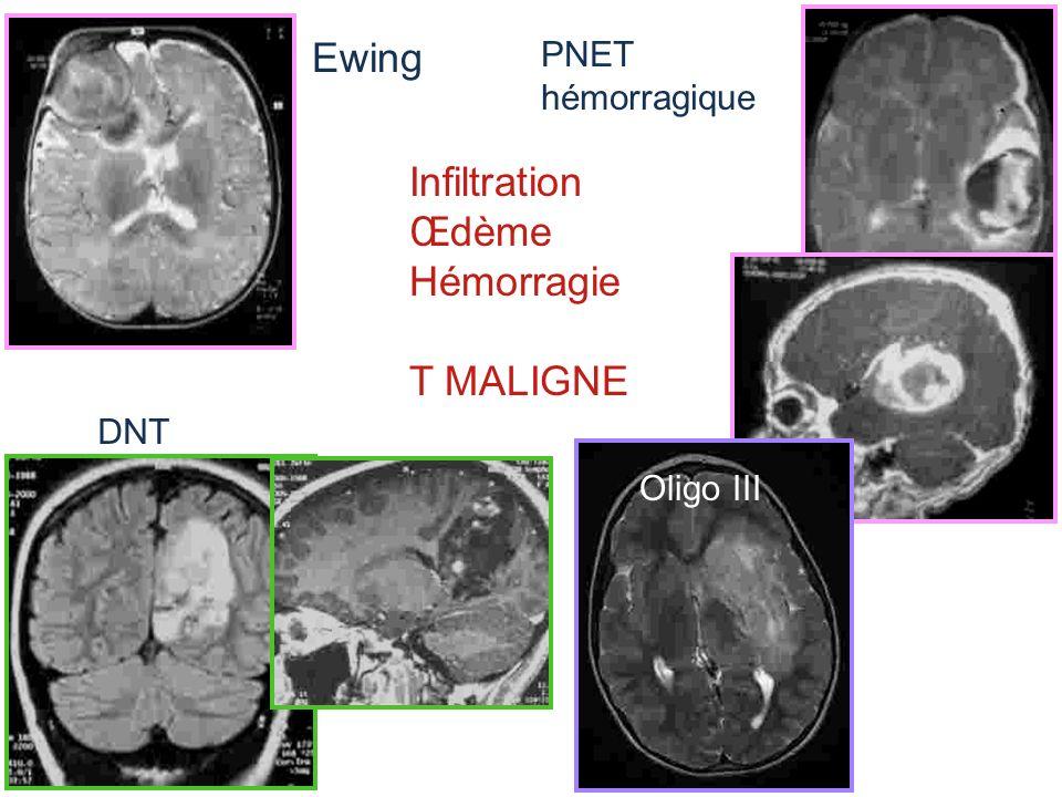 Ewing PNET hémorragique Infiltration Œdème Hémorragie T MALIGNE Oligo III DNT