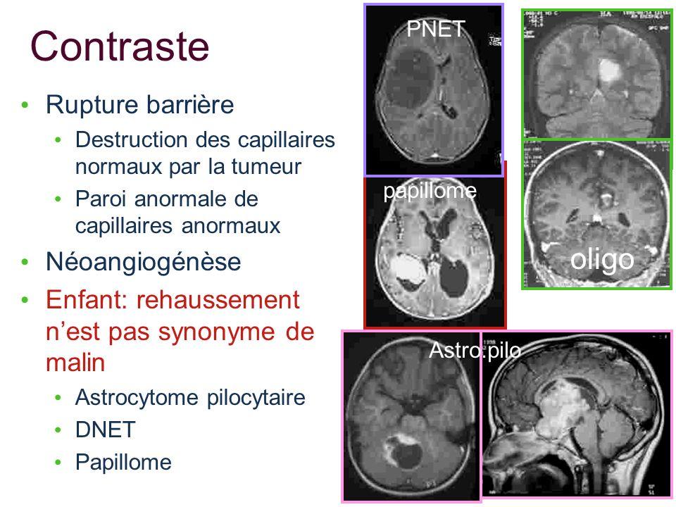 Contraste Rupture barrière Destruction des capillaires normaux par la tumeur Paroi anormale de capillaires anormaux Néoangiogénèse Enfant: rehaussemen