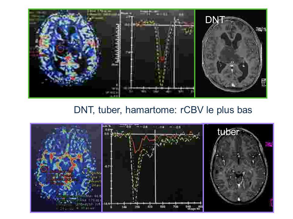 DNT, tuber, hamartome: rCBV le plus bas DNT tuber