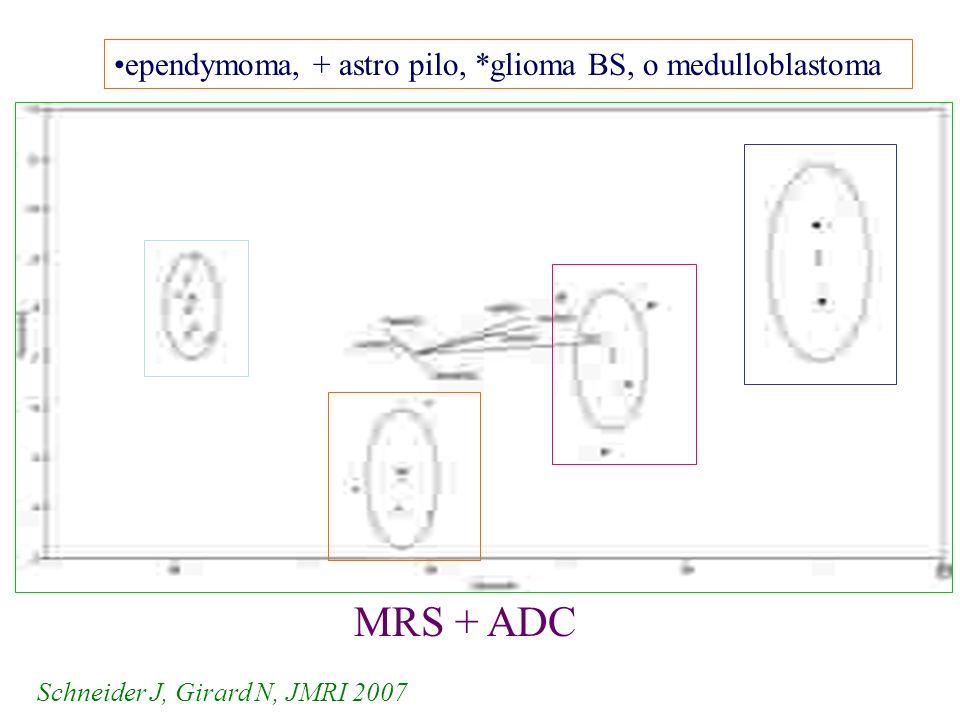 MRS + ADC ependymoma, + astro pilo, *glioma BS, o medulloblastoma Schneider J, Girard N, JMRI 2007