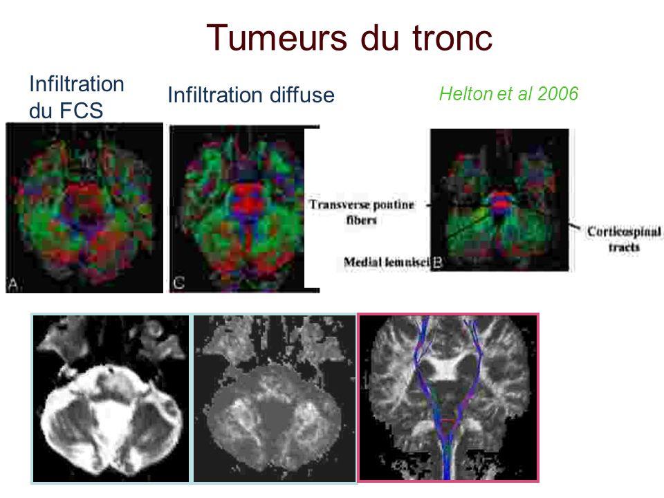 Tumeurs du tronc Infiltration du FCS Infiltration diffuse Helton et al 2006
