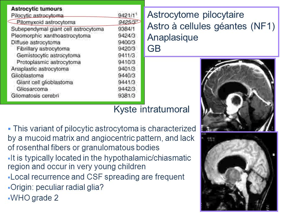 This variant of pilocytic astrocytoma is characterized by a mucoid matrix and angiocentric pattern, and lack of rosenthal fibers or granulomatous bodi